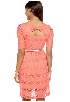 A Byer Lace Dress