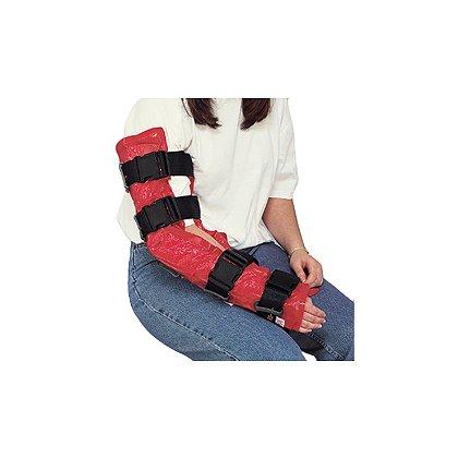 MDI: Arm Vacuum Splint