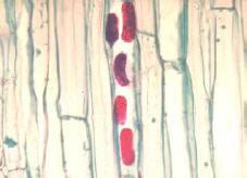 Lesion nematode eggs in corn root tissue.