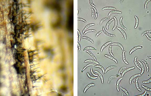These are side-by-side photos showing anthracnose setae and spores.