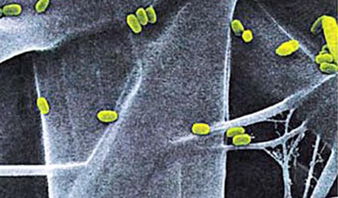 DuPont™ Tyvek® está compuesto por fibras continuas que ofrecen una resistencia intrínseca a la penetración microbiana.
