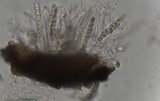 Photo showing a microscopic view of fungal spores of P maydis.